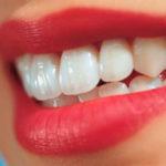 Что такое косметическая реставрация зубов?