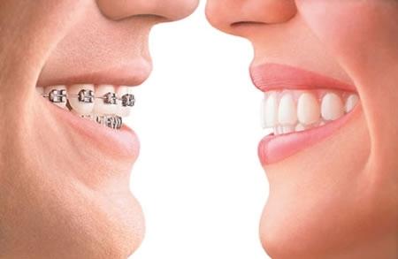 Ортодонтия - эффективный способ для выравнивания зубного ряда