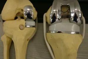 Эндопротезирование коленного сустава, как это делают