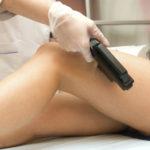 Лечение варикоза лазером – основные особенности и преимущества процедуры
